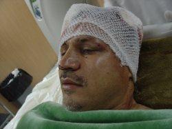 عکس خبري -تشريح جزييات سانحه رانندگي علي دايي
