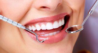 عکس خبري -رازهايي براي سلامتي دهان و دندان
