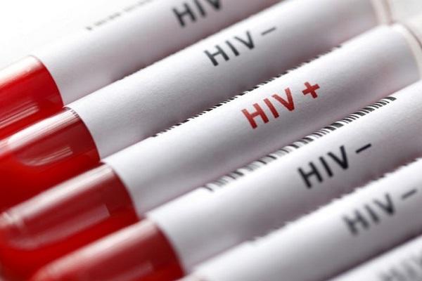 """عکس خبري - براي انجام """"تست رايگان HIV"""" به کجا مراجعه کنيم؟!"""