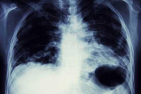 عکس خبري - ابتلا به بيماريهاي وحشتناک با استعمال سيگار